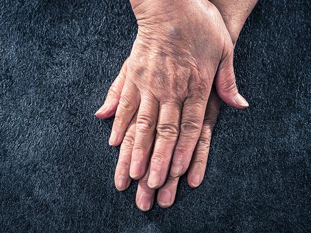 老化を加速するサビとコゲ!?酸化・糖化から身体を守るヒント